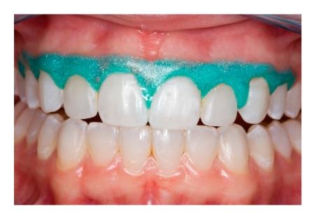 Fig. 2: Extienda la resina hasta un diente más allá del último diente a ser blanqueado. Controle visualmente que todos los tejidos gingivales en el margen de la resina estén cubiertos y que se haya establecido un sello efectivo.