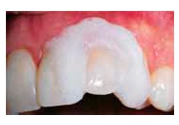 Fig. 5: Para blanqueamiento no vital, cubra aproximadamente la mitad de cada diente vital adyacente con una capa de 3-4mm de espesor de OpalDam/OpalDam Green para aislar dichos dientes de la incomodidad que produce el calor de la lámpara de fotocurado.