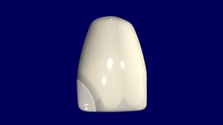 Restauración con material estético directo (suponemos una resina compuesta): se presenta el halo.