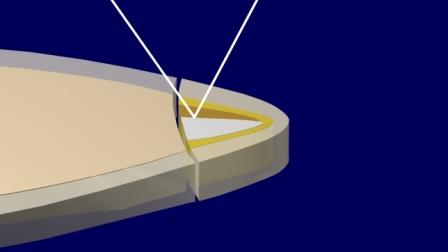Figura 26: El haz de luz, que originariamente continuaba su trayecto hacia palatino, regresa ahora hacia la zona a iluminar.