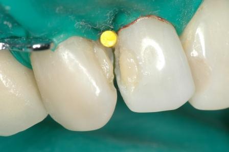 Figura 48: Colocación de Dentina A2.