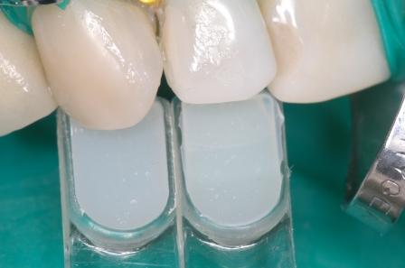 Figura 51: Corroboración del color de la Resina (la pieza dentaria está deshidratada).