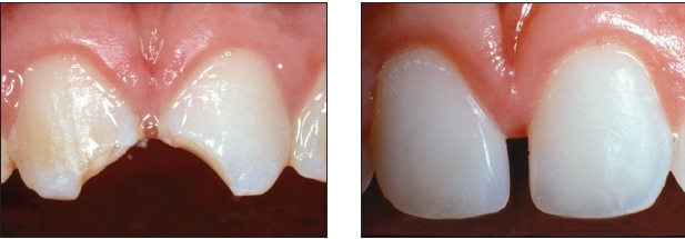 Opalescencia, Fluorescencia y Translucidez tan fabulosas que prácticamente permiten clonar los dientes.