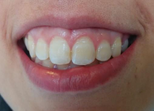 Imagen inicial. Sonrisa de la paciente