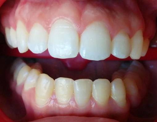 Blanqueamiento del maxilar superior.