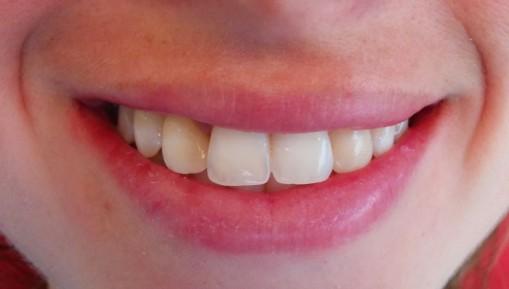 Imagen inicial. Sonrisa de la paciente.