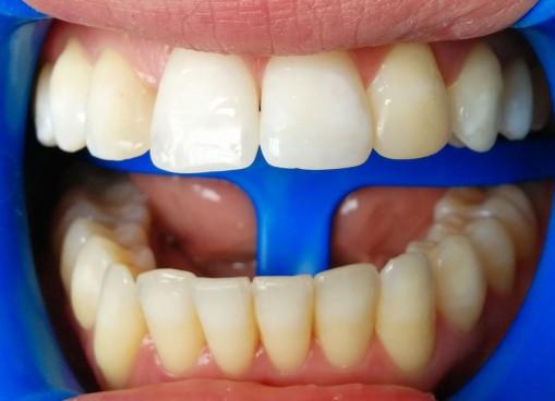 Blanqueamiento del maxilar superior en el segundo control. Se decide dejar de blanquear los incisivos centrales.