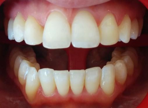 Blanqueamiento finalizado en el maxilar superior. Se comienza con el maxilar inferior.