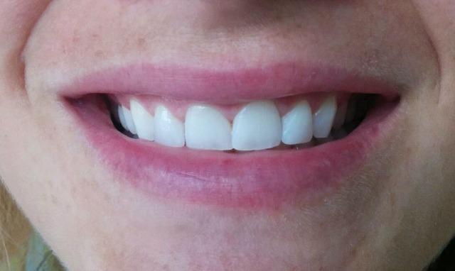 Imagen final. Sonrisa de la paciente.