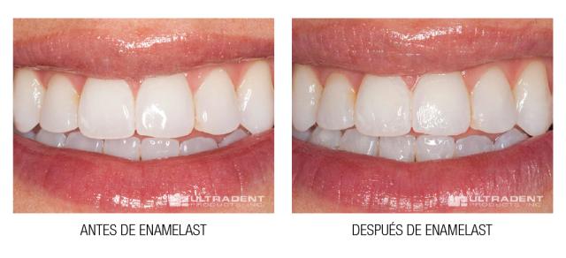 Antes y Después-03